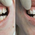 Реставрация зубов. Красивую и здоровую улыбку вам подарит стоматологическая клиника «Стома Сервис».