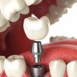 Имплантация зубов. Что нужно знать и куда обратиться.