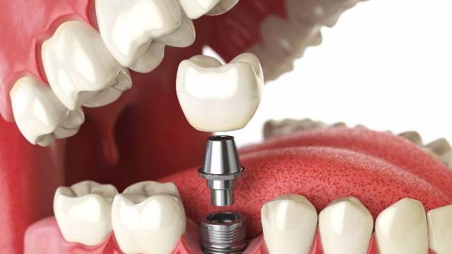имплантация зубов в Одессе